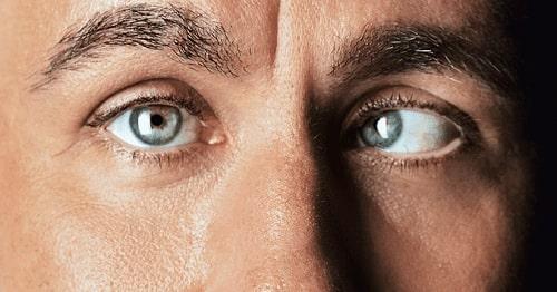 انواع استرابیسم (انحراف چشم)