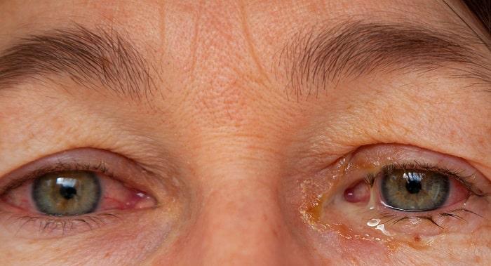 ترشح چشم (قی کردن چشم)