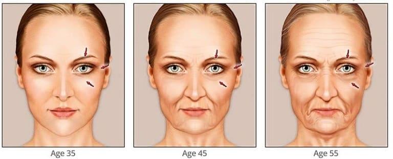 تغییرات مختلف پوست