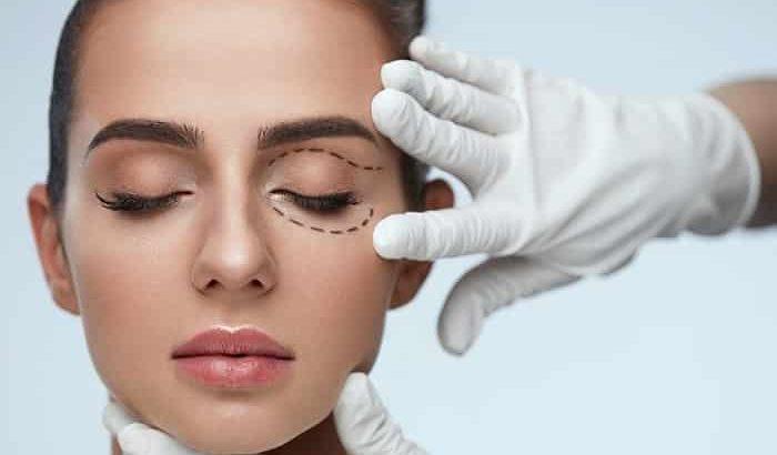 جوانسازی پلک با جراحی زیبایی پلک، مزوتراپی و لیزر اطراف چشم-min
