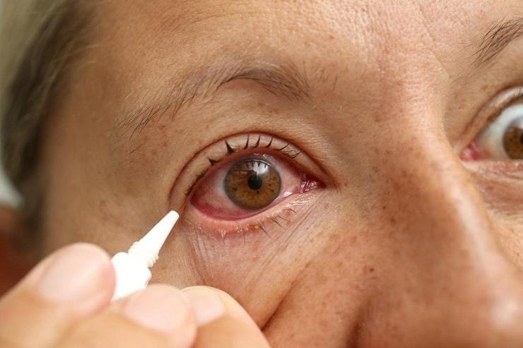 درمانهای پزشکی و خانگی سوزش چشم