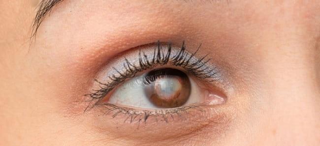 درمان آب مروارید (کاتارکت) با عینک، قطره چشمی و جراحی