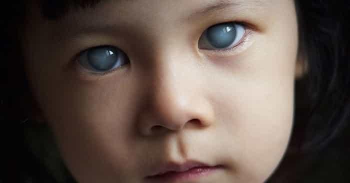 درمان انواع اب سیاه چشم در کودکان با دارو و جراحی گلوکوم-min