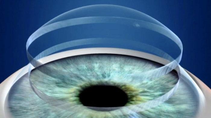 روش های جراحی پیوند قرنیه چشم (کراتوپلاستی) و مراقبت بعد آن