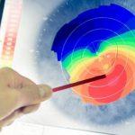 مزایای توپوگرافی چشم