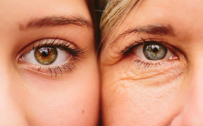پوست دور چشم به مراقبت و درمان ویژه نیاز دارد