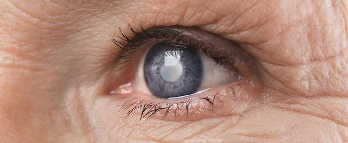 پیشگیری از آب مروارید چشم (کاتارکت)