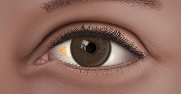 پینگوکولا قابل درمان است؟ علت ایجاد توده زرد روی چشم چیست؟