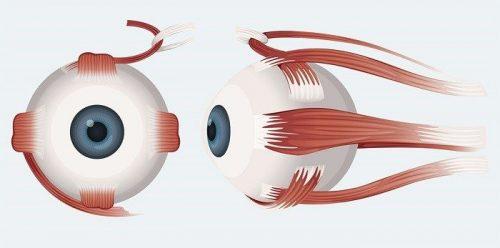 استرابیسم و لوچی چشم