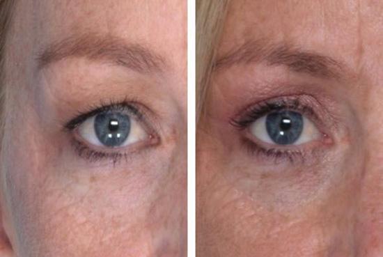 6 - چند روش درمانی افتادگی پلک