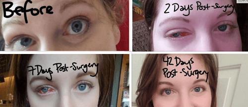 دوران بهبودی پس از عمل جراحی انحراف چشم