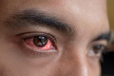سوزش چشم