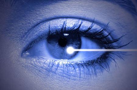 جراحی لیزری چشم